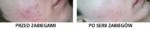 acne nowy