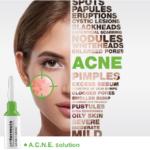acne strona