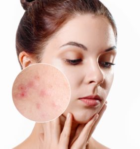 Young woman with acne skin in zoom circle. Skin care concept. Young girl, beauty portrait. Close-up.