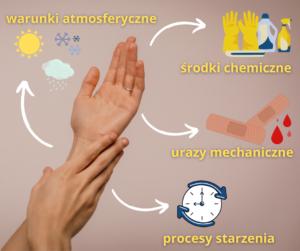 dłonie (2)